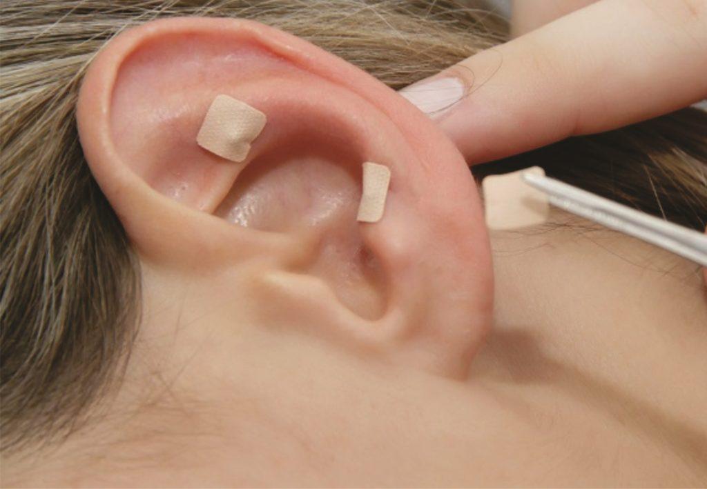 Qualidade de vida - acupuntura na orelha